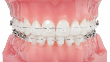 Types Of Braces Keystone Orthodontics